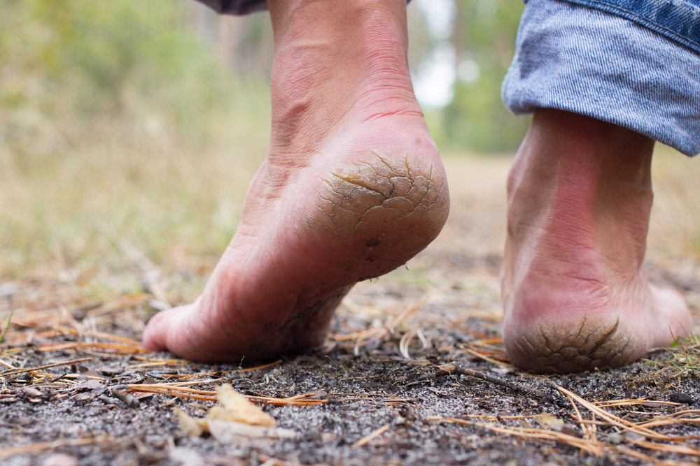 Top 5 Treatment Products for Cracked Feet